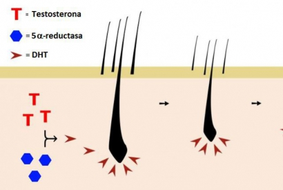 Getting to know the hair loss process: the role of the 5-reductase enzyme