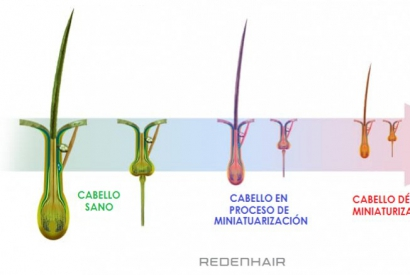 What is hair miniaturisation?